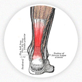 An image of a leg diagram