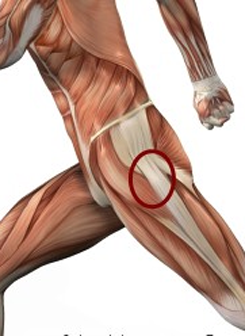 hip drop running injuries