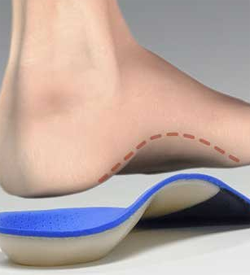 Are Custom Running Orthotics Worth the Cost