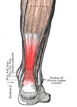 achilles tendonitis running