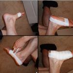 Plantar Fasciitis: The Scientific Signs, Symptoms and Causes as well as Research-Backed Treatment Options for Runners