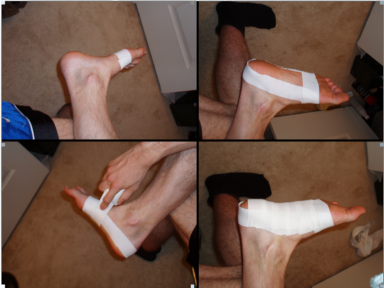 low dye taping plantar fascia