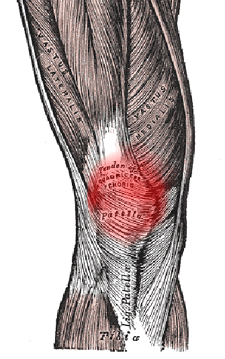 runners knee Patellofemoral pain syndrome