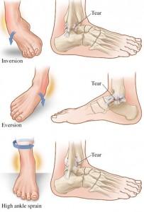 ankle sprain runners