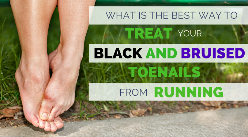 What Is The Best Way To Treat Black And Bruised Toenail From Running