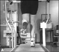 Photo Source: Davis, I. Orthopaedic Practice Vol. 17;2:05