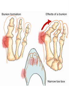 Image result for bunions on your feet