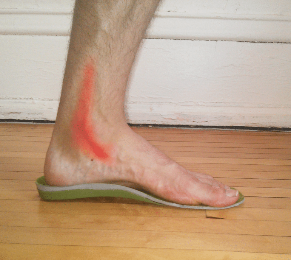 4 Ways to Prevent and Treat Posterior Tibial Tendonitis - Runners ...