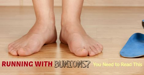 Bunions are a common runner problem no one wants, but it happens. Is surgery going to help? It does not have to mean the end of your running career, if you take care of it now. Helpful unbiased article on how to help decide what to do next.