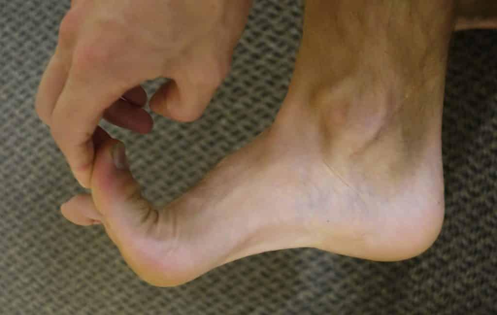 big toe injury